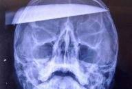 Zdjęcie rentgenowskie rannego w głowę gracza