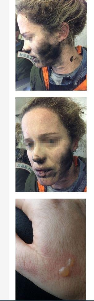 Kobieta poparzona przez wybuch słuchawek (źródło ATSB)